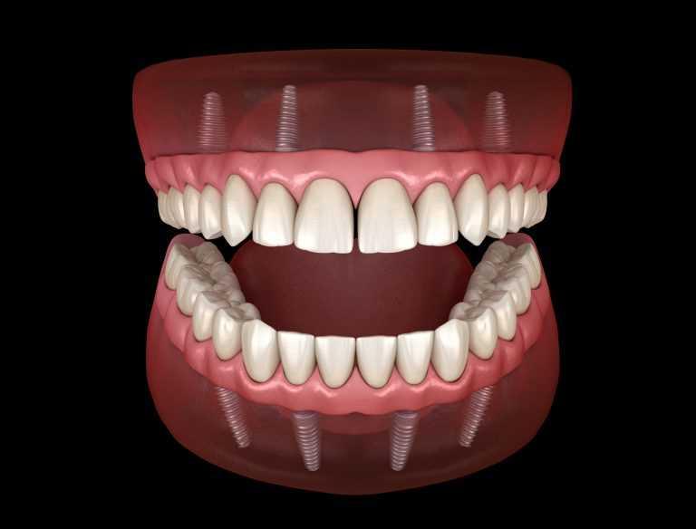 stomatolog-apolonija-zagreb-centar-3D-prikaz-mosta-na-implantatima-s-4-implantata