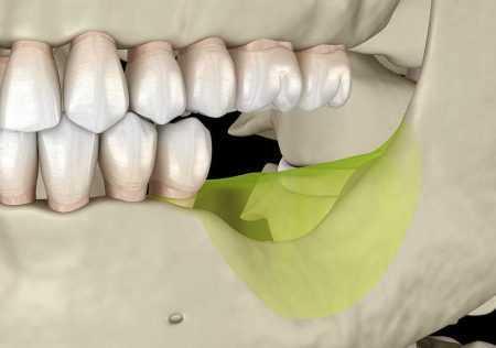 3D-ilustracija-resorpcije-odnosno-propadanja-celjusne-kosti-na-mjestu-nedostatka-zuba