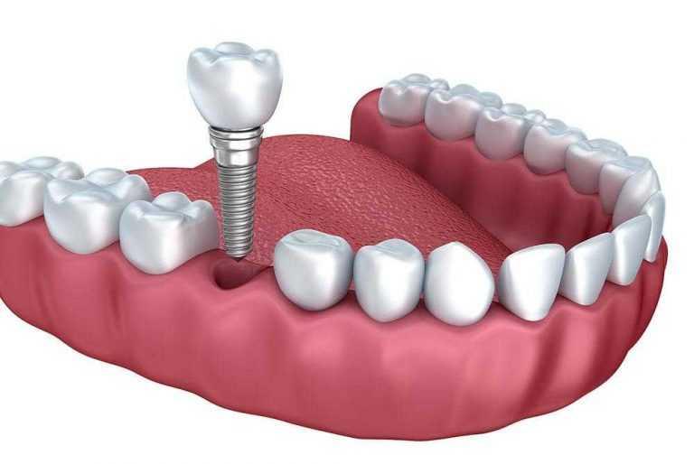 3D-ilustracija-ugradnje-metalnog-implantata-umjesto-jednog-zuba