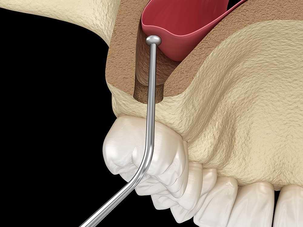 3D-prikaz-operacije-podizanja-sinusa