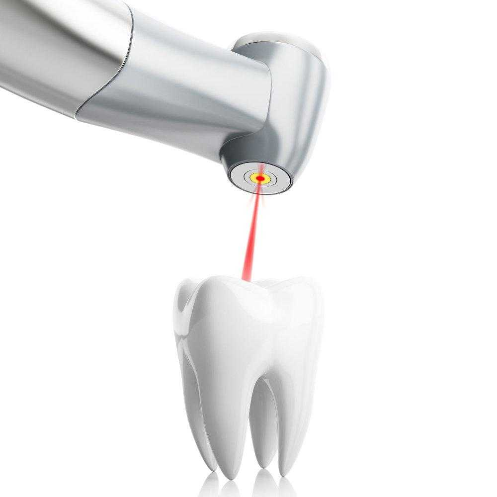 stomatolog-apolonija-zagreb-centar-3d-ilustracija-stomatološkog-lasera