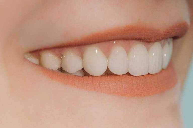 kreamicke-ljuskice-na-zubima-mlade-zenske-osobe