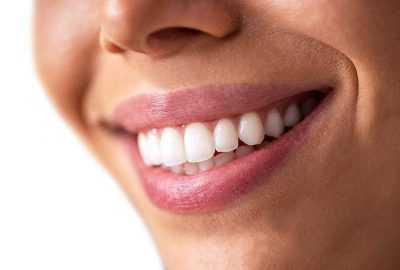 Kako zadržati zube nakon ortodontske terapije?