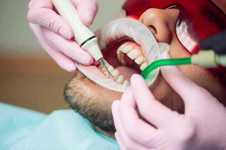 pacijent-u-stomatoloskoj-ordinaciji-na-tretmanu-ciscenja-kamenca