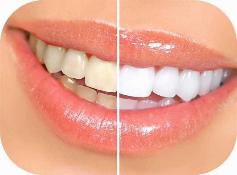 prekrasan-osmijeh-djevojke-prije-i-poslije-izbjeljivanja