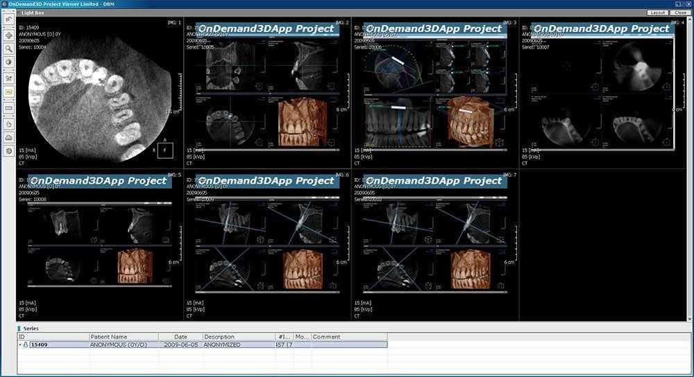 slika-3D-CBCT-snimke