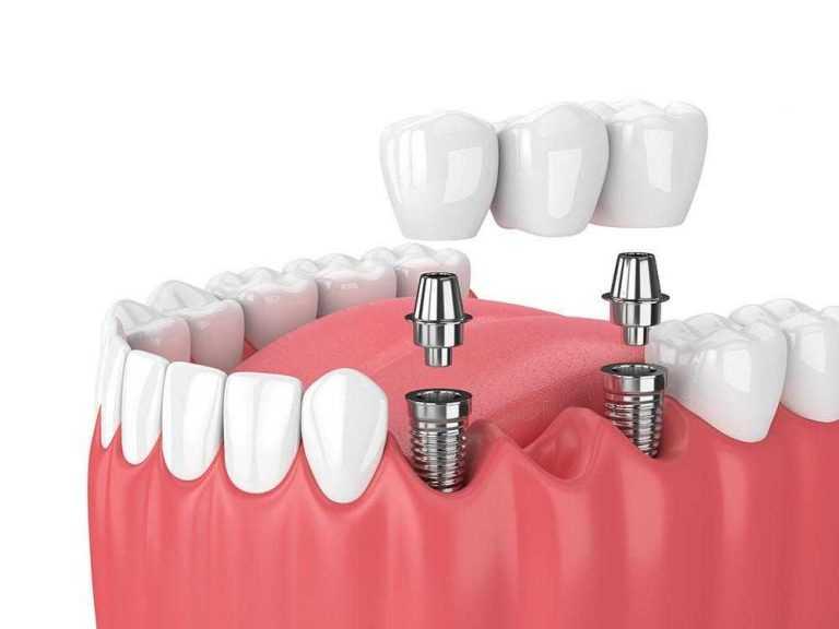 zubni-most-sastavljen-od-tri-krunice-na-dva-implantata