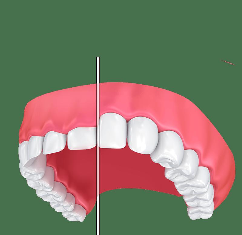 Stomatološka poliklinika Apolonija, Zagreb centar: nisku granicu gingive možemo riješiti laserskim povećanjem krune zuba.