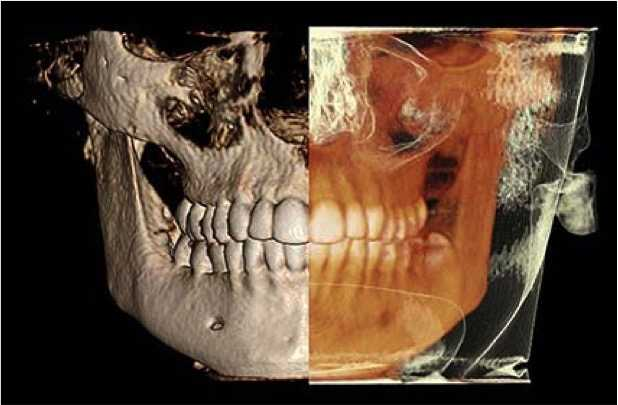Stomatološka poliklinika Apolonija, Zagreb centar: 3D CBCT snimak koji prikazuje stanje kosti i okolnih tkiva.