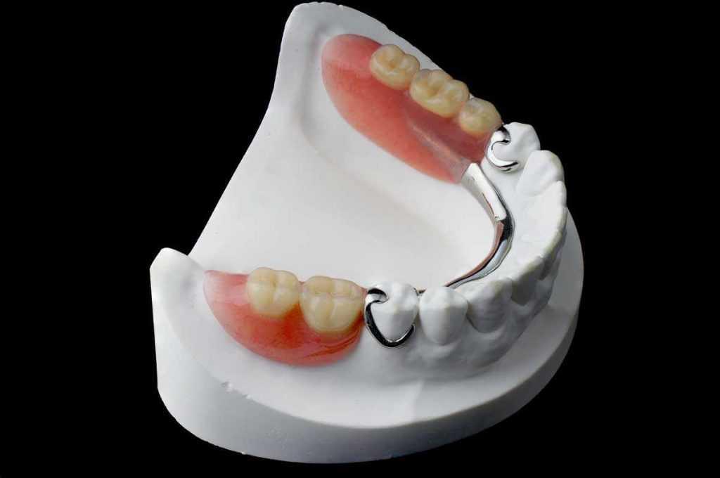 Stomatološka poliklinika Apolonija, Zagreb centar: proces izrade parcijalne zubne proteze.