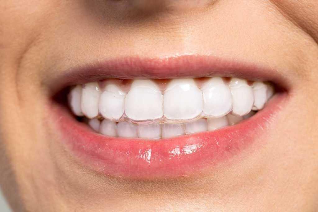 Stomatološka poliklinika Apolonija, Zagreb centar: Invisalign prozirne folije na zubima pacijenta, potpuno su nevidljive