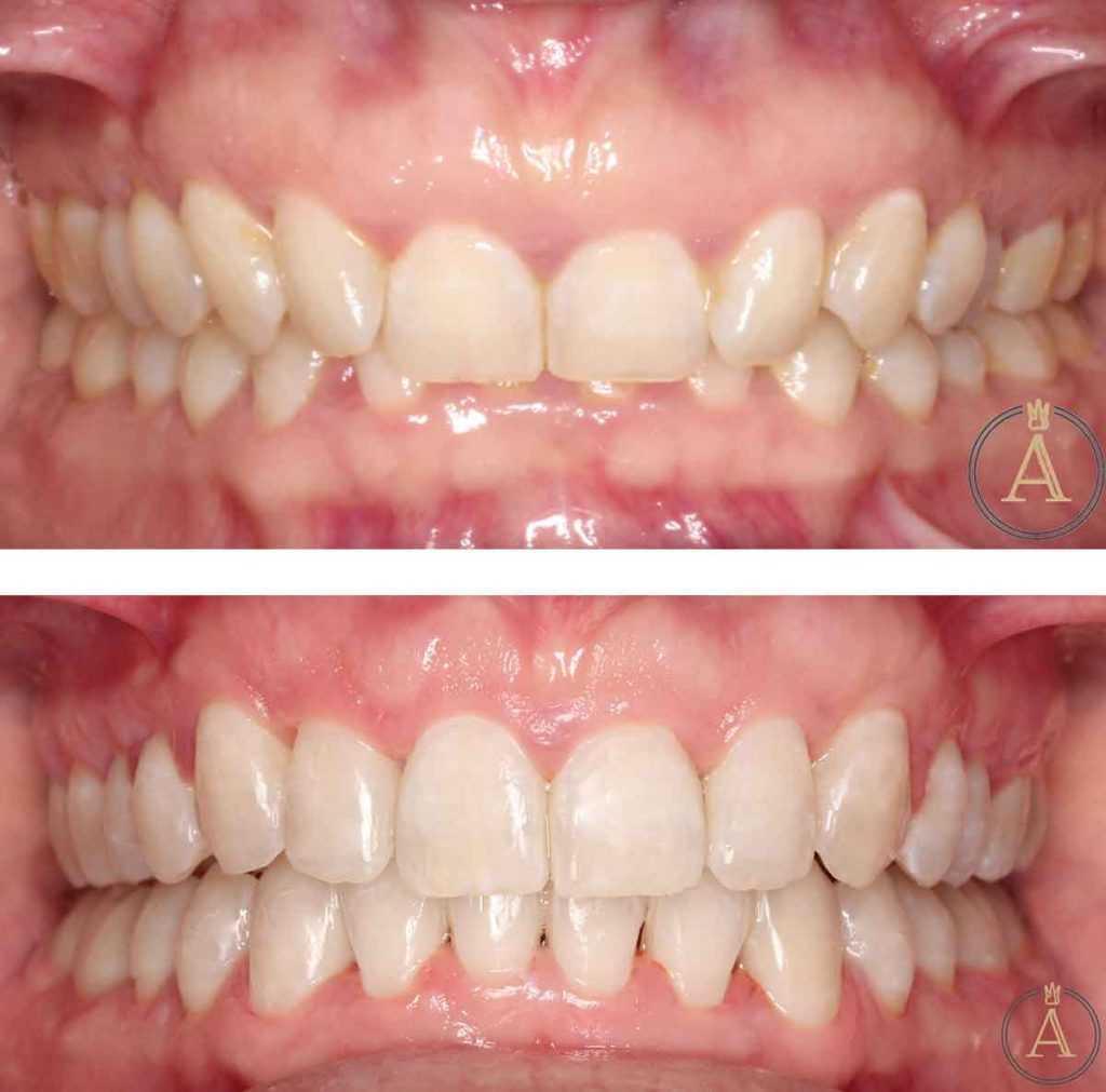 Stomatološka poliklinika Apolonija Zagreb, centar: primjer poboljšanja estetike osmijeha, korekcija pokrovnog zagriza, zubnog mesa te ortodontska terapija i izbjeljivanje zubi, prije-poslije.