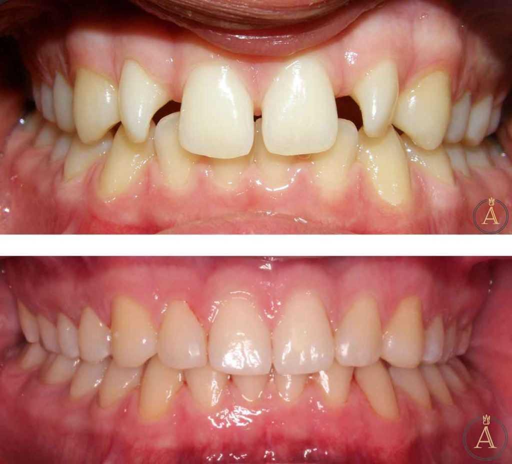 Stomatološka poliklinika Apolonija Zagreb, centar: rezultati ugradnje zubnih implantata, implantiranje na mjestu kutnjaka, ortodontska terapija i keramičke ljuskice, prije-poslije.