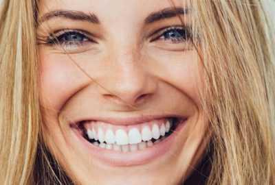 Za i protiv: može li se do 'holivudskog' osmijeha ovom terapijom?