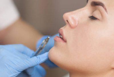 Kod stomatologa po dermalne filere! No, što je važno znati prije tretmana?